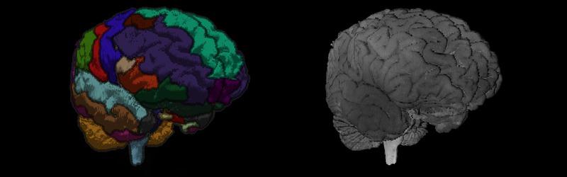 sectional-anatomy.org - Schnittbildanatomie CT, MRI