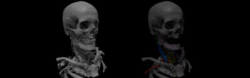 Sectional Anatomy Radiologic Anatomy Of Ct Mri